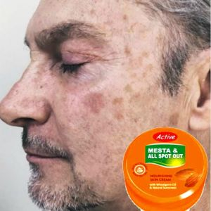 Active Mesta and All Spot Out Whitening Cream - 10gm